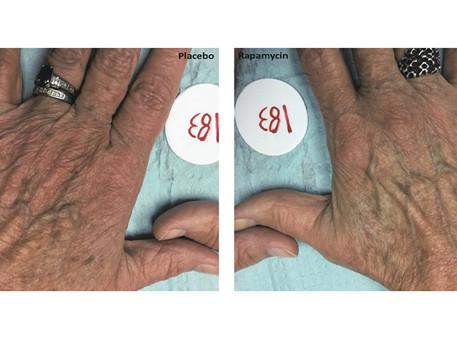 Topical rapamycin may slow skin aging