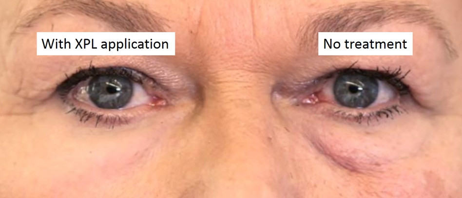 Second skin study showing improved under-eye appearance