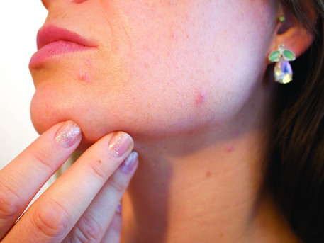 Acne: current Tx may have adverse impact on beneficial bacteria