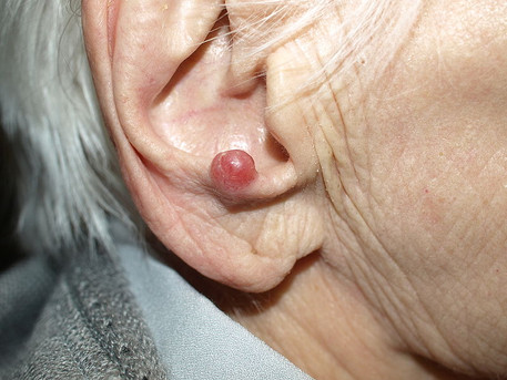 Aging population may be cause of increased MCC diagnoses
