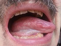 Боковая поверхность языка