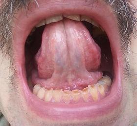 Вентральная поверхность языка