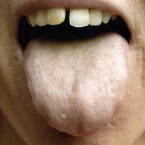 Диагностика по языку