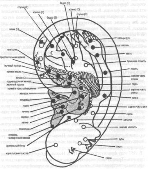 Ауриколотерапия
