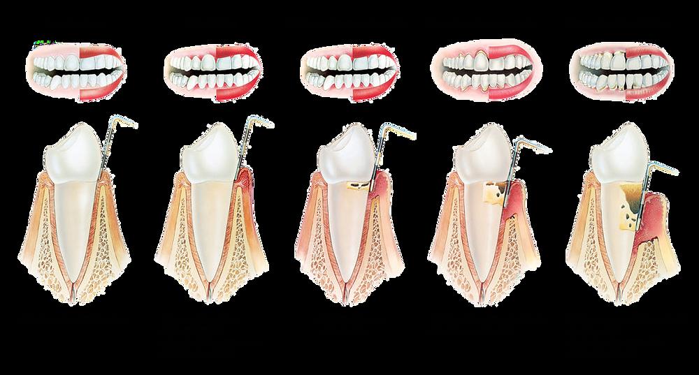 evolution de la maladie parodontale