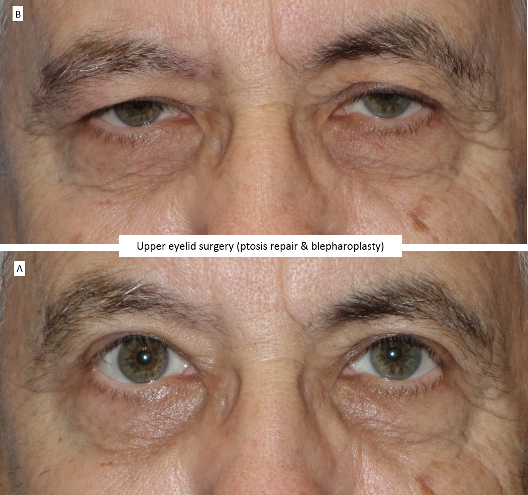 Upper eyelid surgery (ptosis repair & blepharoplasty )