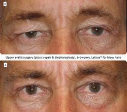 Upper_eyelid_surgery_(ptosis_repair_&_blepharoplasty),_browpexy,_Latisse®_for_brow_hairs