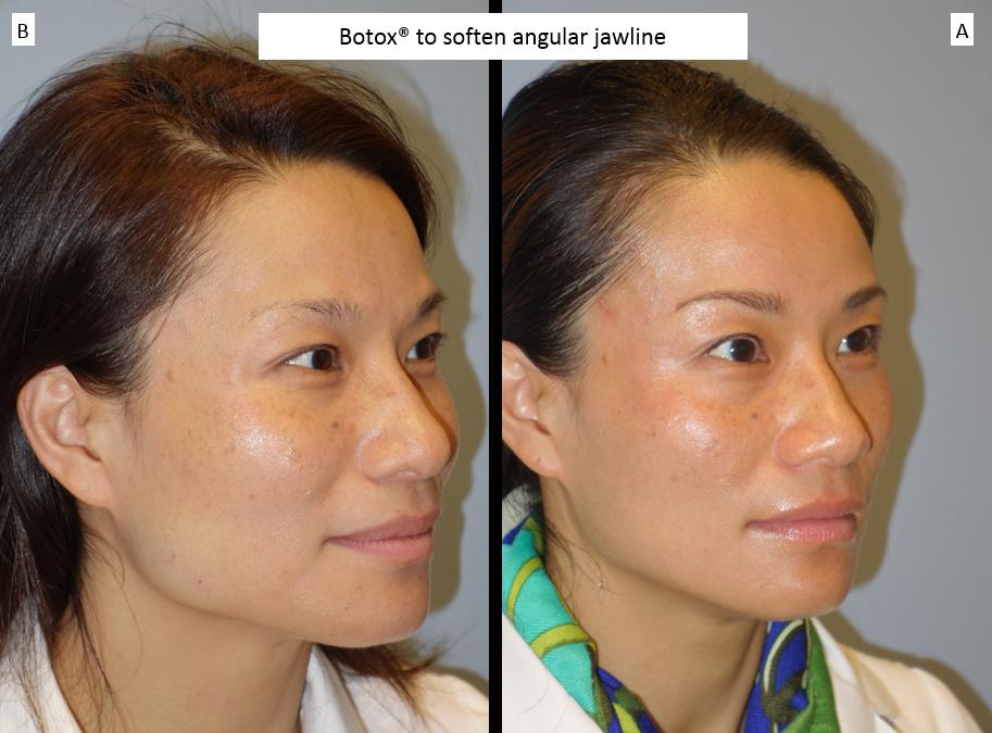 Botox®_to_soften_angular_jawline_2