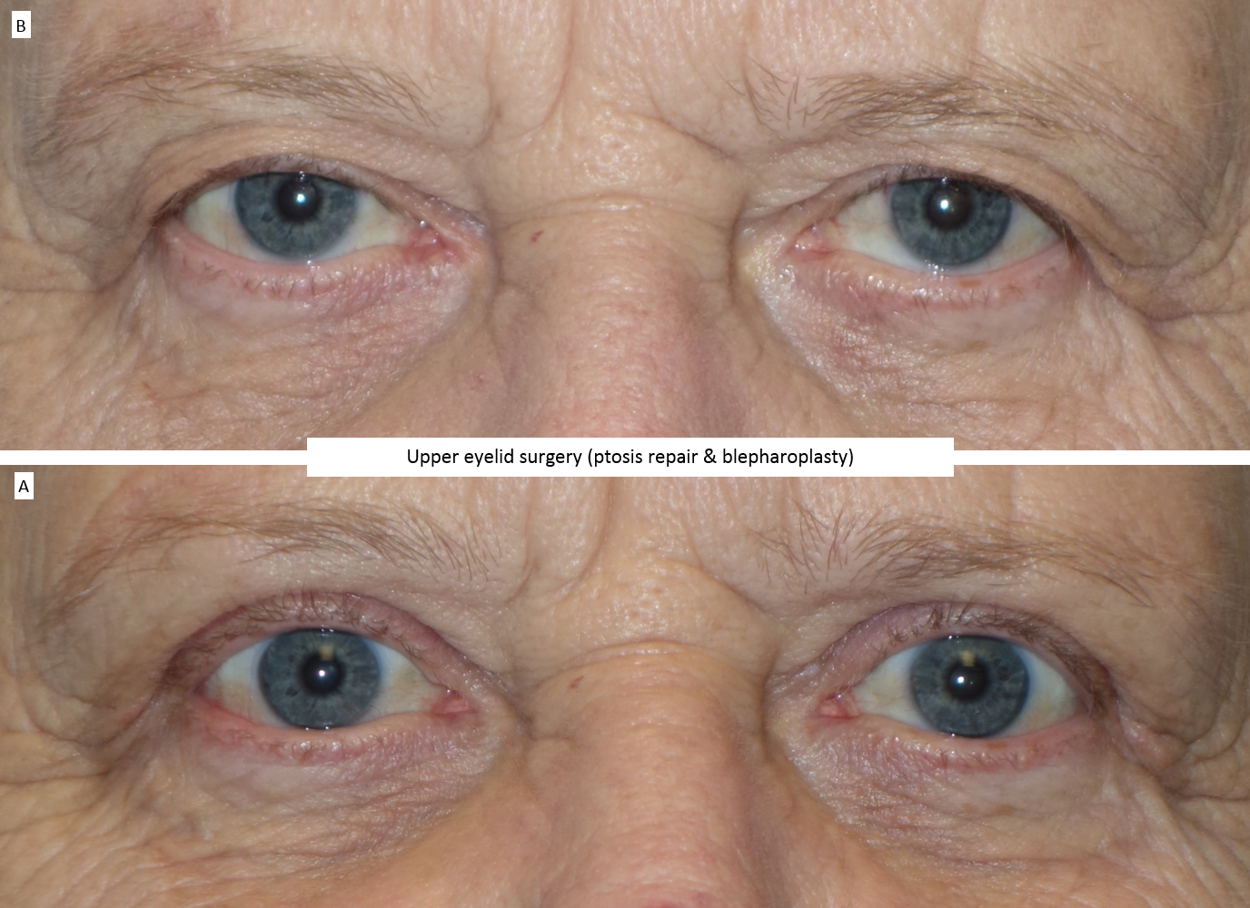 Upper eyelid surgery (ptosis repair & blepharoplasty) 2