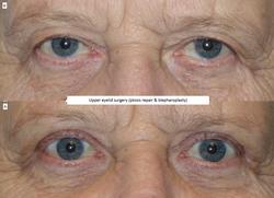Upper eyelid surgery (ptosis repair & blepharoplasty) 2