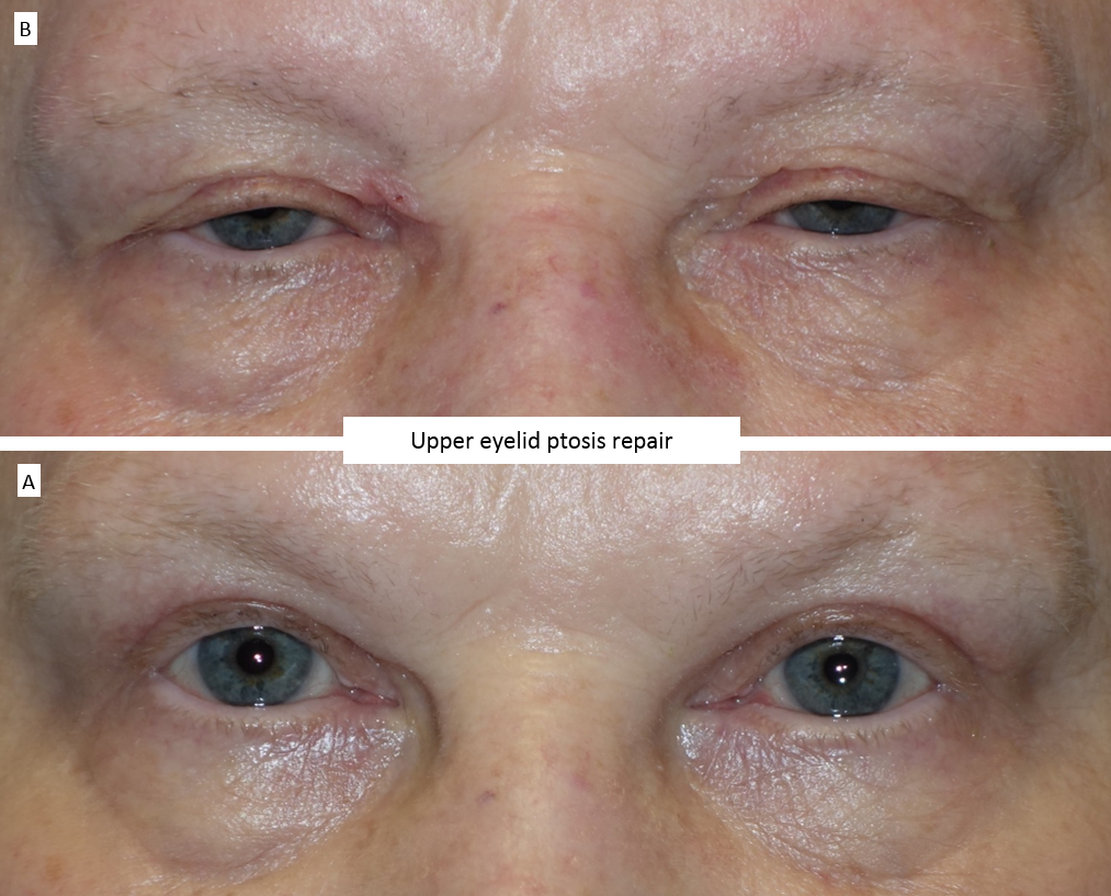 Upper eyelid ptosis repair 2