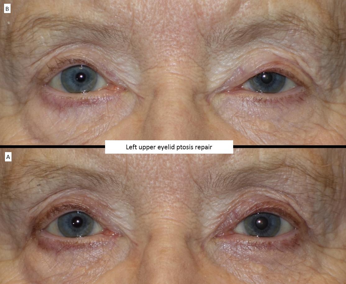 Left upper eyelid ptosis repair