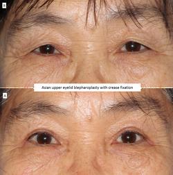 Asian upper eyelid blepharoplasty with crease fixation 2