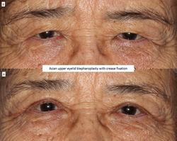 Asian upper eyelid blepharoplasty with crease fixation