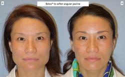 Botox®_to_soften_angular_jawline