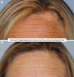 Removal of large benign bony tumor at hairline without causing hair loss