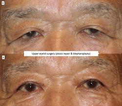 Upper eyelid surgery (ptosis repair & blepharoplasty) 5