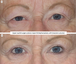 Upper eyelid surgery (ptosis repair & blepharoplasty with brassiere sutures) 2