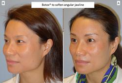 Botox®_to_soften_angular_jawline_3