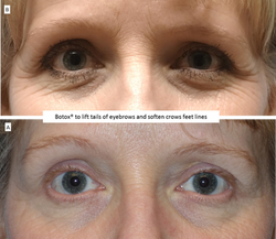 Botox®_to_lift_tails_of_eyebrows_and_soften_crows_feet_lines