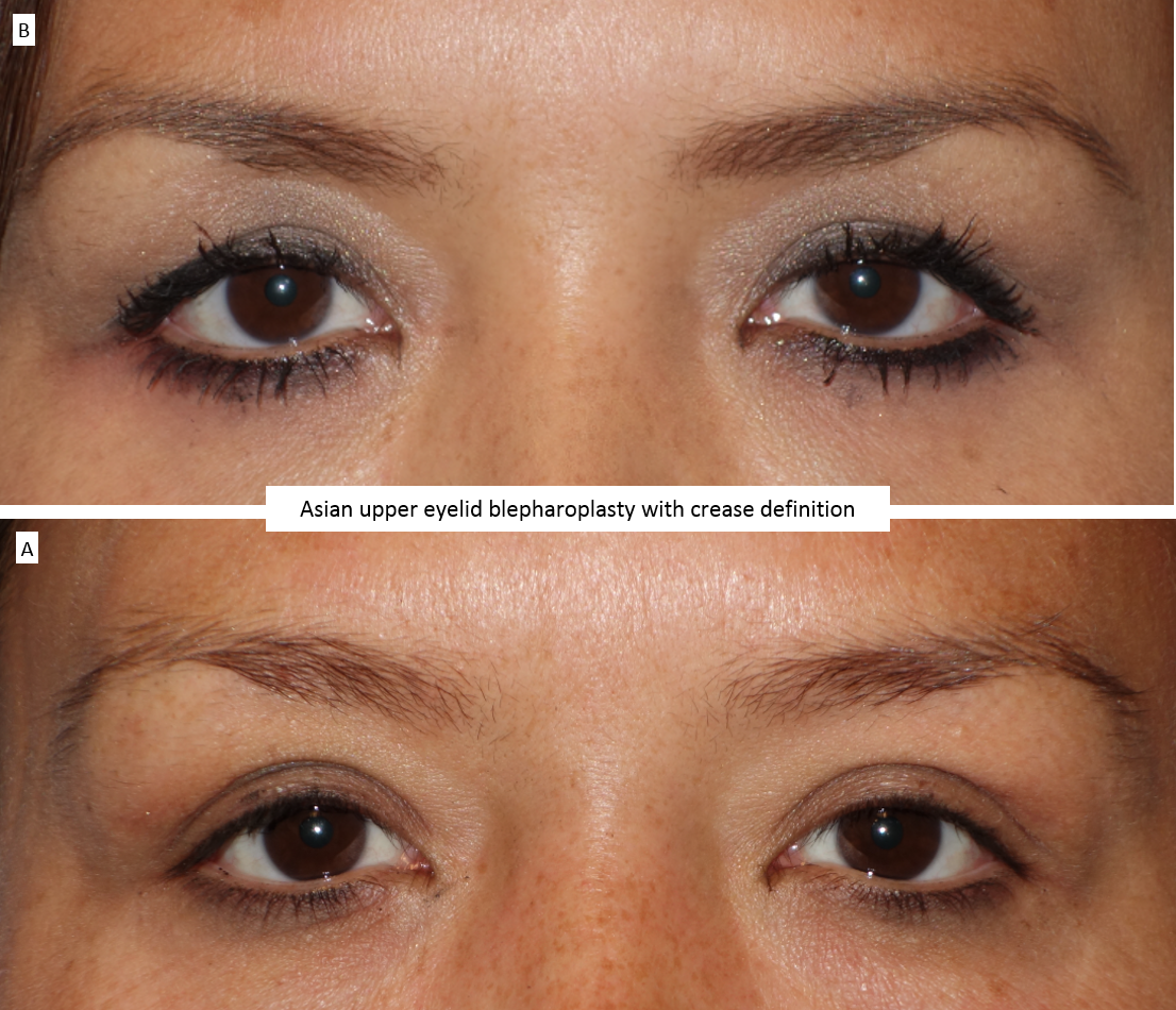 Asian upper eyelid blepharoplasty with crease definition