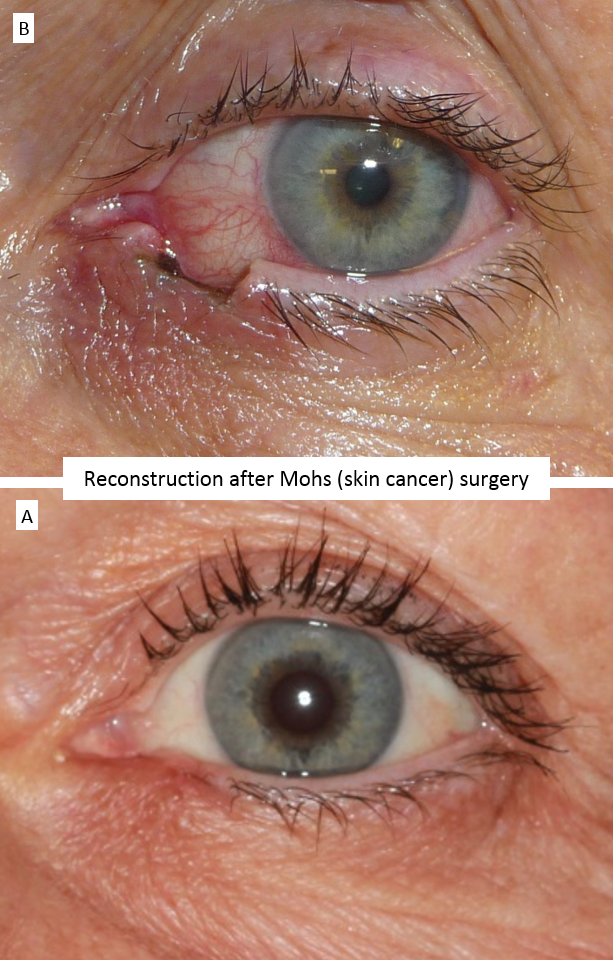 Reconstruction after Mohs (skin cancer) surgery 4