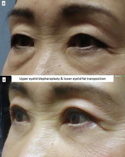 Upper eyelid blepharoplasty & lower eyelid fat transposition 4
