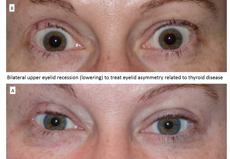 Bilateral upper eyelid recession (lowering) to treat eyelid asymmetry related to thyroid disease
