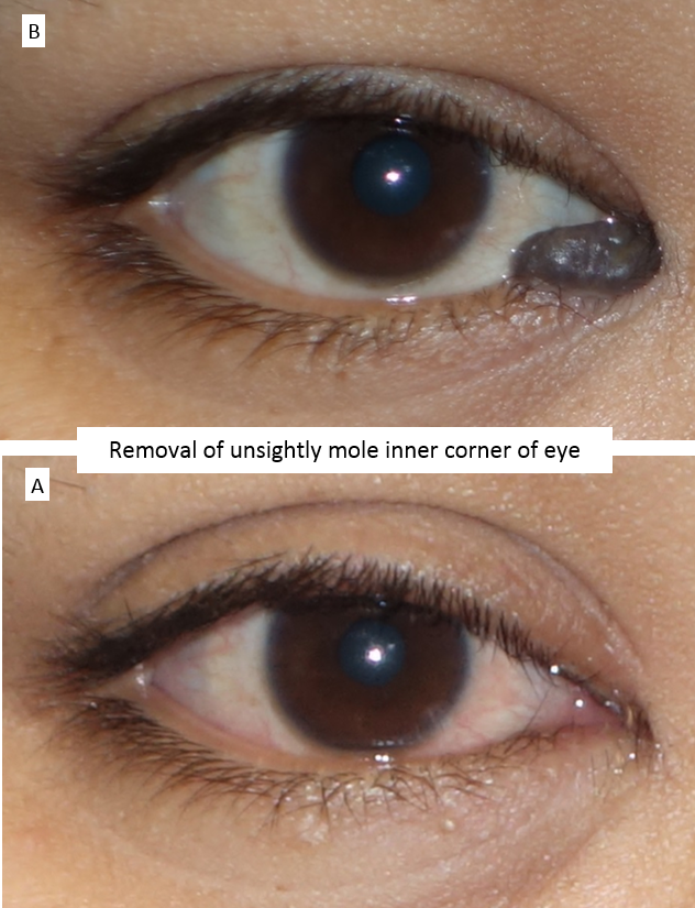 Removal of unsightly mole inner corner of eye