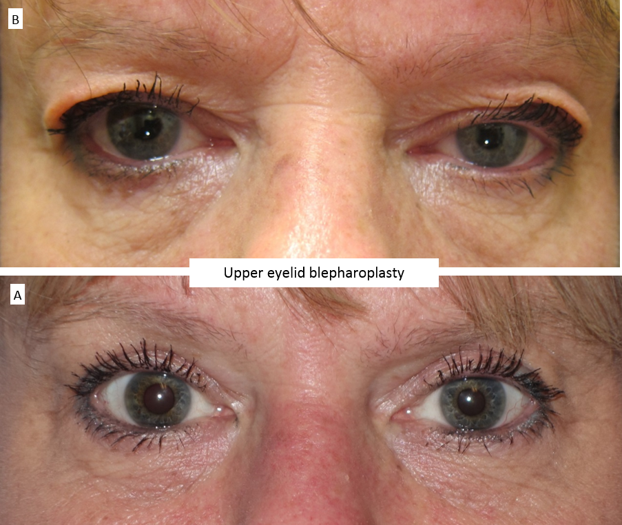 Upper eyelid blepharoplasty 3
