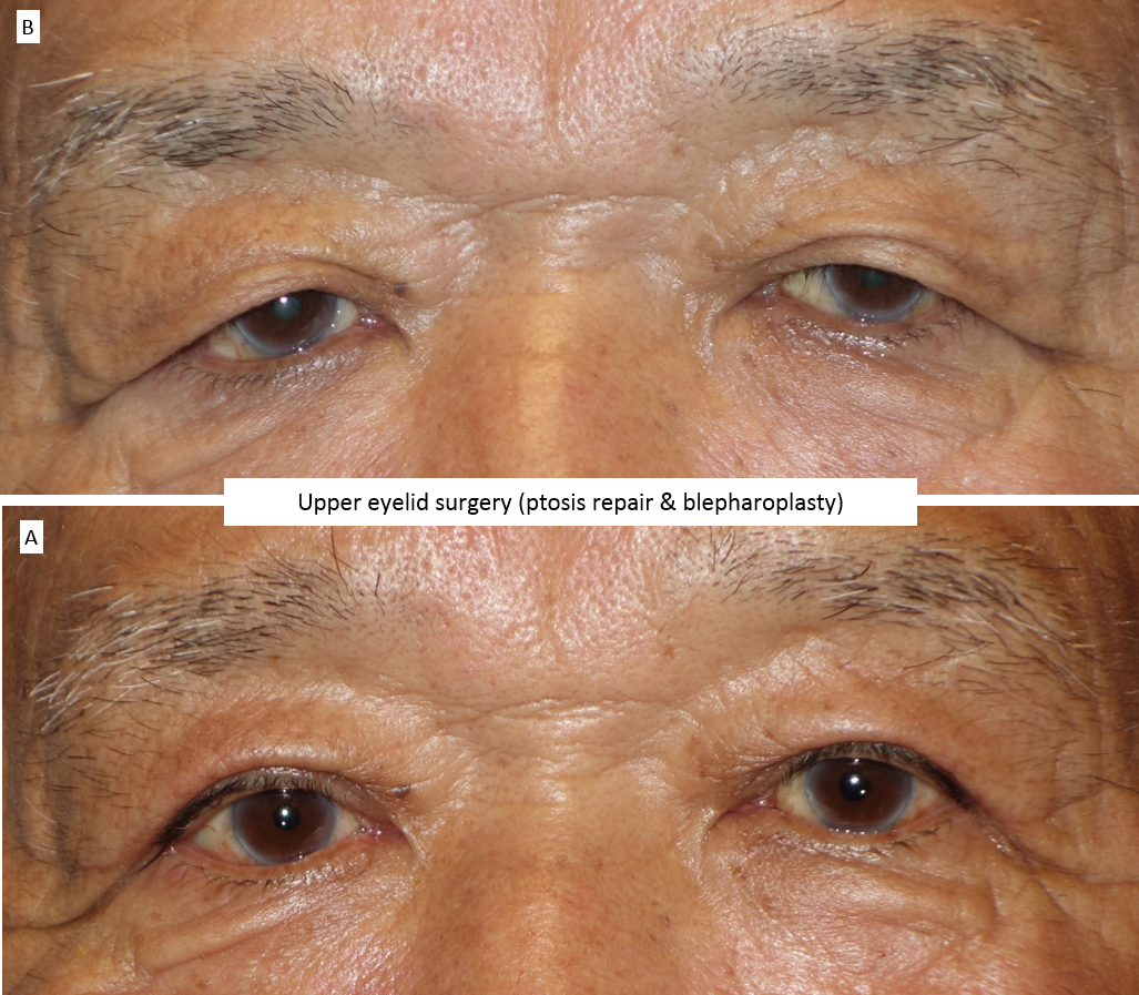 Upper eyelid surgery (ptosis repair & blepharoplasty) 5