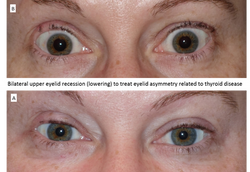 Bilateral upper eyelid recession (lowering) to treat eyelid asymmetry related to thyroid disease