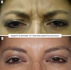 """Dysport®_to_eliminate_""""11""""_lines_when_patient_furrows_brows"""