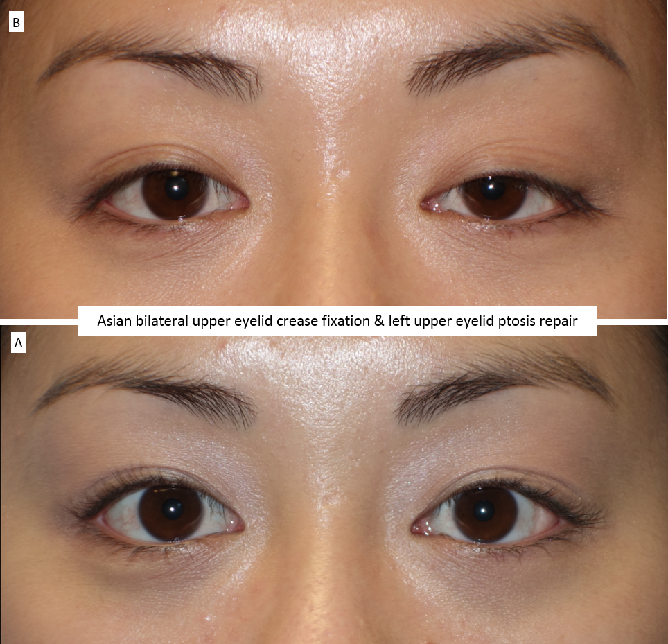 Asian bilateral upper eyelid crease fixation & left upper eyelid ptosis repair