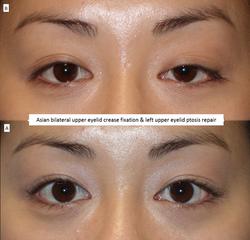 Asian bilateral upper eyelid crease fixation & left upper eyelid ptosis repair
