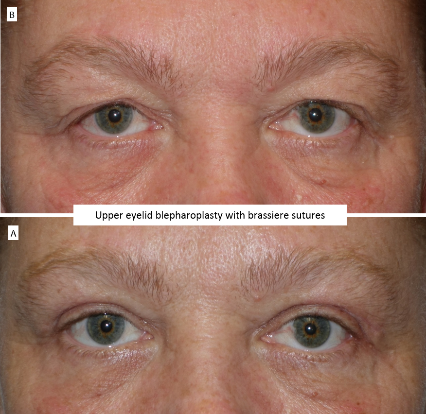 Upper eyelid blepharoplasty with brassiere sutures