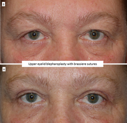 Upper eyelid blepharoplasty with brassiere sutures