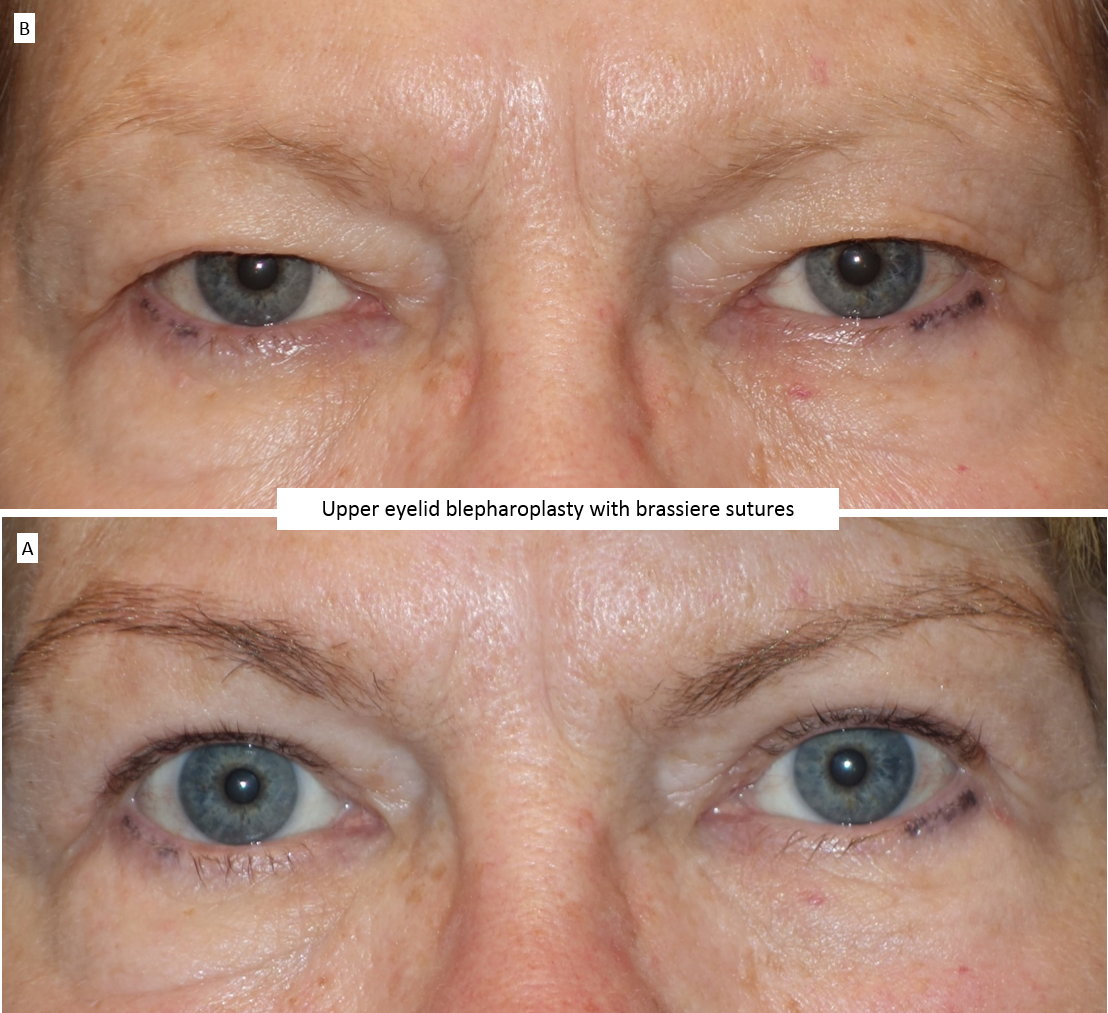 Upper eyelid blepharoplasty with brassiere sutures 2