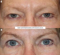 Upper eyelid blepharoplasty with brassiere sutures 2