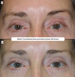 Botox®_to_enhance_brow_symmetry_(lower_left_brow)
