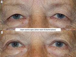 Upper eyelid surgery (ptosis repair & blepharoplasty) 6