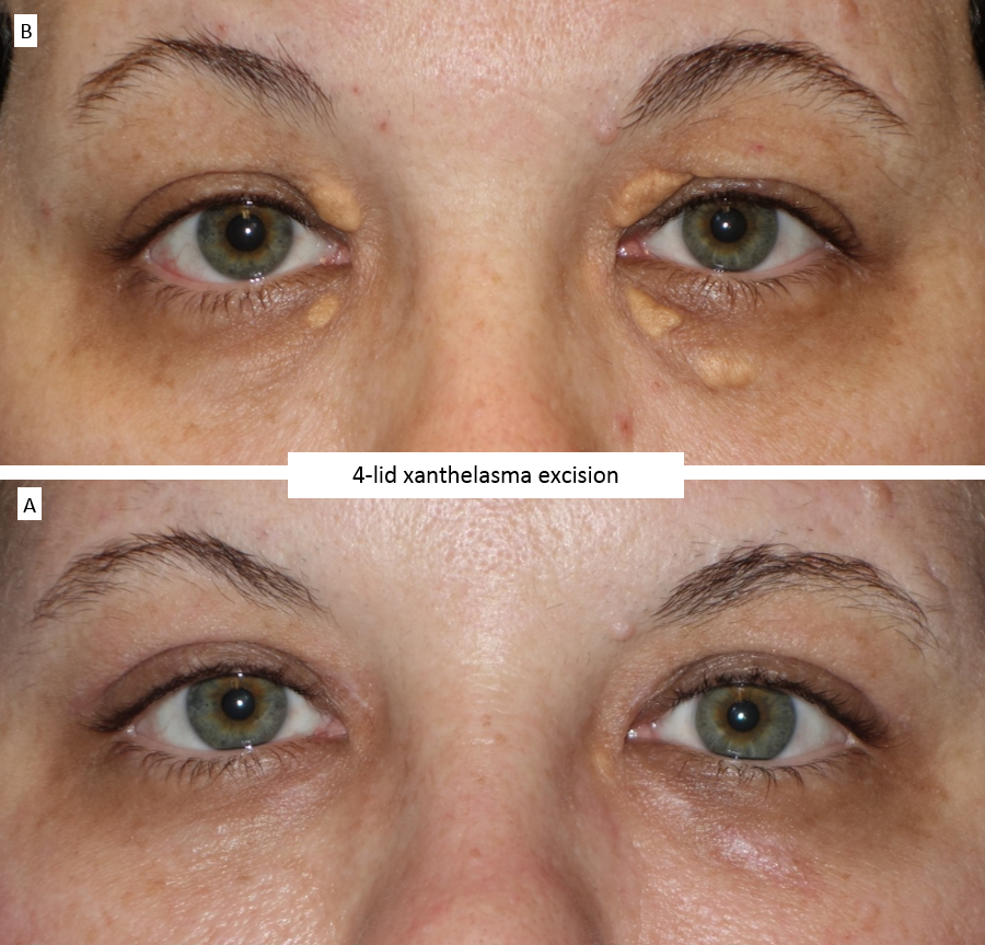 4-lid xanthelasma excision