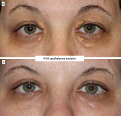 4-lid xanthelasma excision