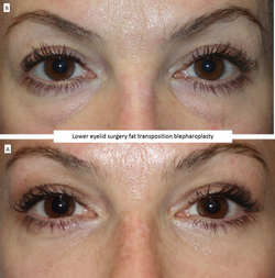 Lower eyelid surgery fat transposition blepharoplasty
