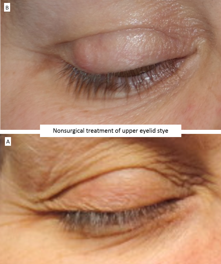 Nonsurgical treatment of upper eyelid stye
