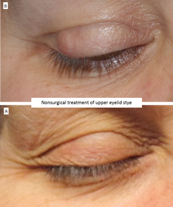 Nonsurgical treatment of upper eyelid stye