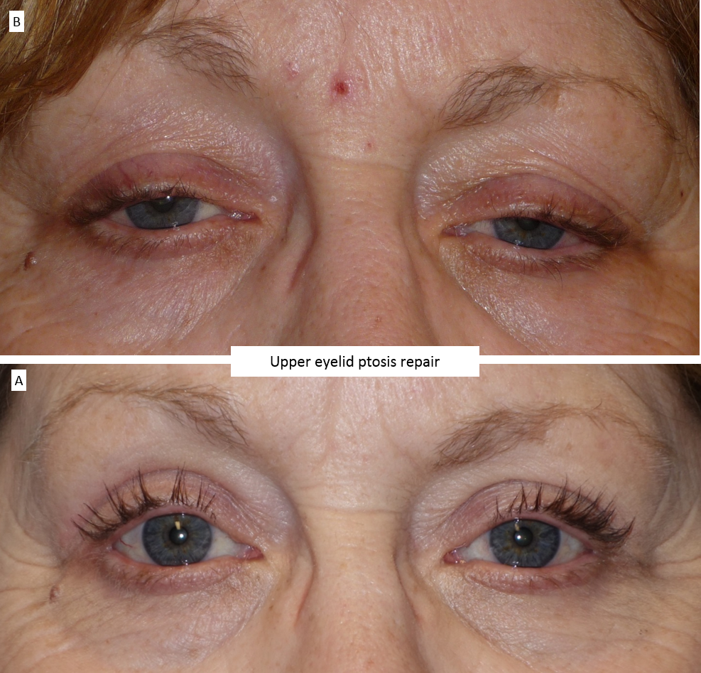 Upper eyelid ptosis repair 3