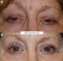 Upper eyelid ptosis repair 3