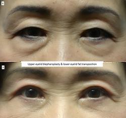 Upper eyelid blepharoplasty & lower eyelid fat transposition 2