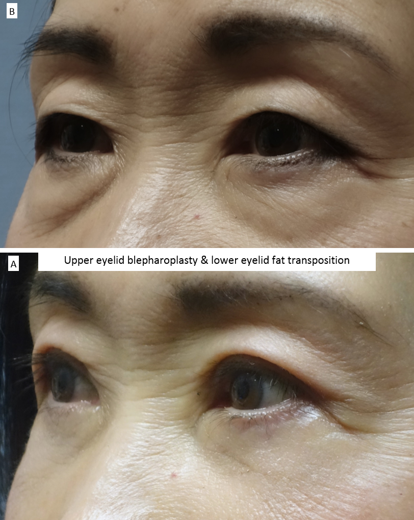 Upper eyelid blepharoplasty & lower eyelid fat transposition 4